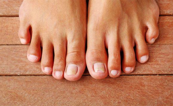 Huile essentielle contre la mycose de l'ongle du pied : quelle est la meilleure ?