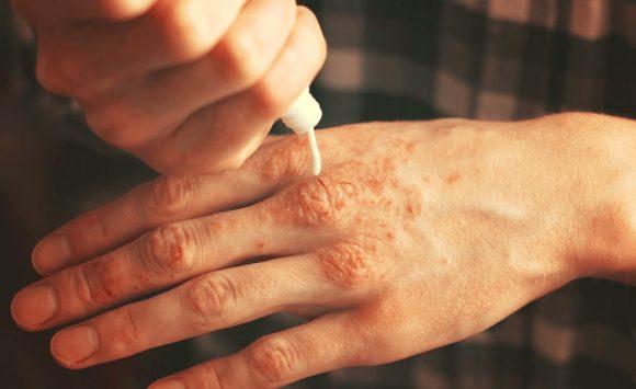 Psoriasis, 12 huiles essentielles pour s'en défaire naturellement