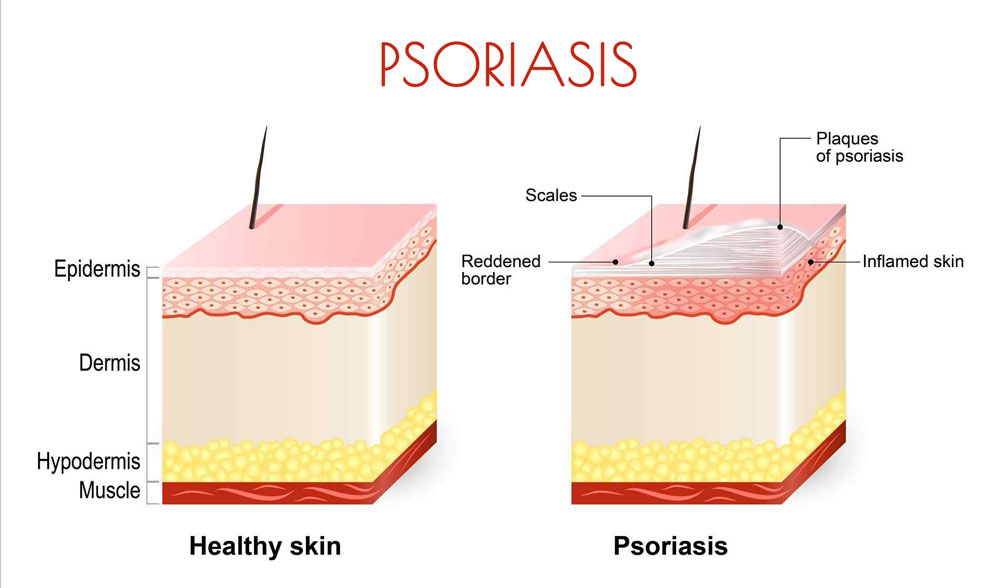 huile essentielle pour psoriasis corps