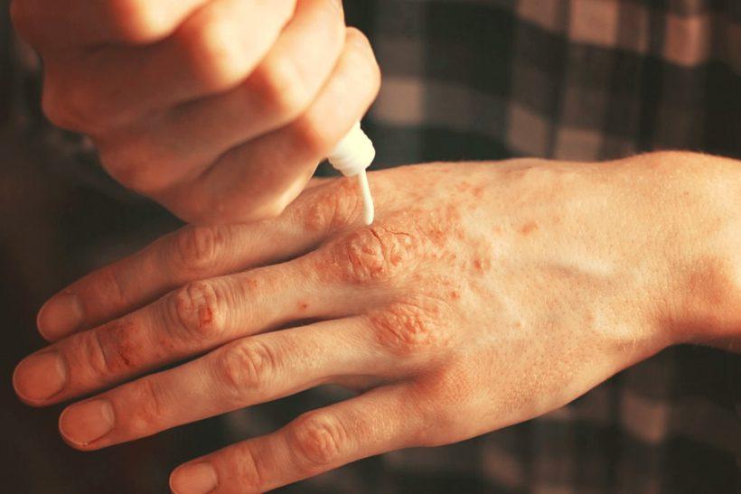 Psoriasis, 10 huiles essentielles pour s'en défaire naturellement