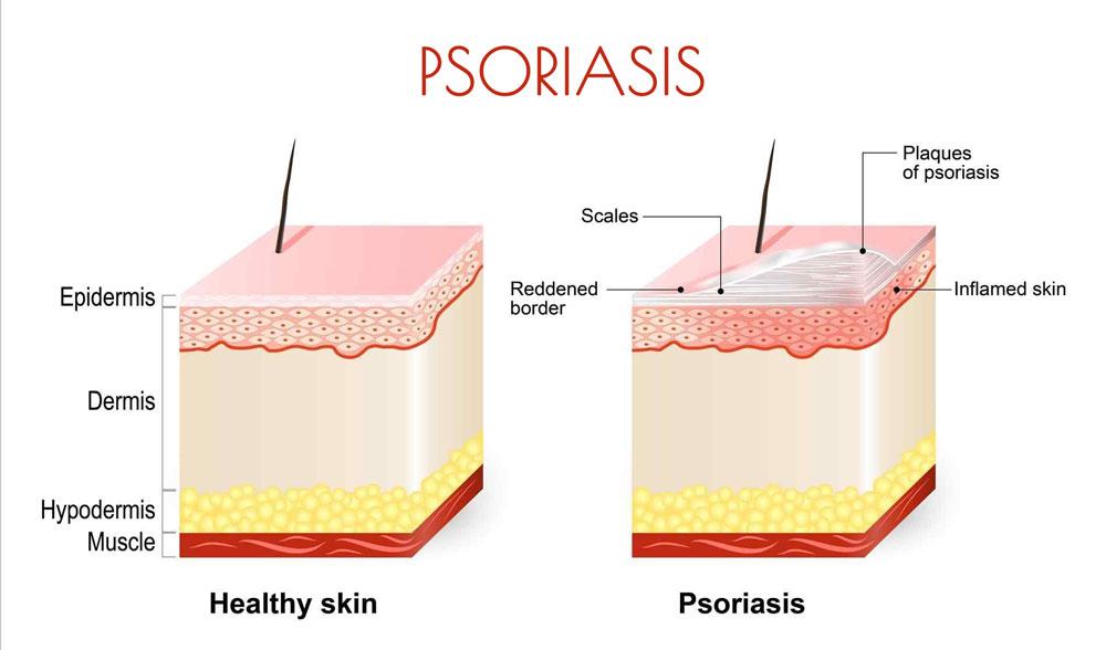 comment soigner naturellement le psoriasis