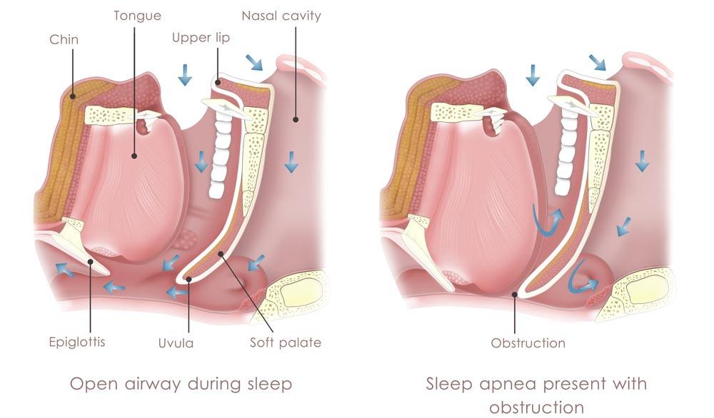apnée du sommeil traitements